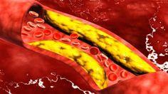 #Sí, demasiado colesterol 'bueno' también puede ser malo - NVI Noticias: NVI Noticias Sí, demasiado colesterol 'bueno' también puede ser…