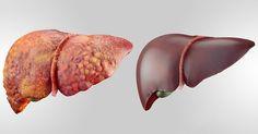 6 alimentos fundamentales que desintoxican su hígado rápidamente #salud