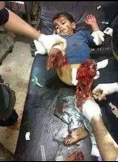 Gaza, Palestine (July 07-14)  Iraeli F-16's are bombing civilian homes. Hope you are proud that U.S. and Canadian Tax dollars support hurting this little infant. This is not war, it is Ethnic Cleansing and Genocide.