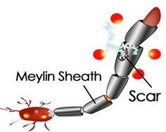 Here's a good visual representation of what happens to the myelin sheath over the nerve in Multiple Sclerosis. MS, which is an auto immune disease, effects the central nervous system and our bodies attack itself causing scars on our nerves. It's these scars, plaques or lesions that cause signal loss with visual, cognitive, & muscular functions. If you can reduce the inflammation w/in your body, this will help reduce the severity & number of attacks produced by the disease. MS-Living Symptom…