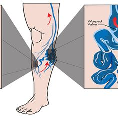 Varicose veins are disease of the superficial venous system. Natural Cures, Natural Healing, Compression Hose, Boehringer Ingelheim, Varicose Veins, Beauty Care, Beauty Tips, Reduce Inflammation, Home Remedies