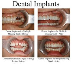 The before and after from these dental implants is amazing!
