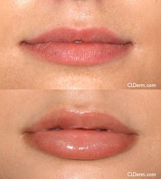 Juvederm is used to plump the the lips for nonsurgical lip augmentation.