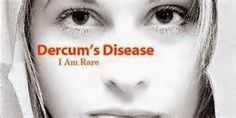 Living With Dercum's Disease: Why I Wish I Had Cancer