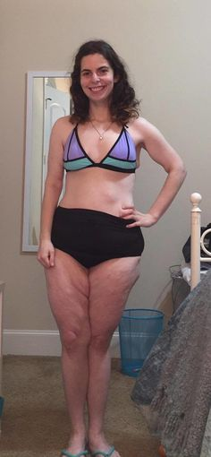 It's proof that, yes, every body is a bikini body. #summer #bodyimage http://greatist.com/live/body-positive-bikini-photo-goes-viral-on-facebook