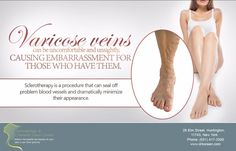 Are you ready to dust off those shorts? Call us today at (631) 417-3300 to find out if you are a candidate for Sclerotherapy treatment for varicose veins.   #DermatologistHuntington #SclerotherapyTreatment