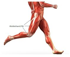 Iliotibial Band (ITBS) Syndrome:  The Top 5 Causes and Solutions