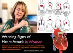 Symptoms of myocardial infarction, or heart attack, are different in men and women. Experts say signs of heart attack exhibited in men are not displayed by women. This difference in the exhibition of heart attack Fatigue Causes, Chronic Fatigue Symptoms, Chronic Fatigue Syndrome, Chronic Tiredness, Healthy Heart Tips, How To Stay Healthy, Healthy Food, Signs Of Heart Attack, Health Tips