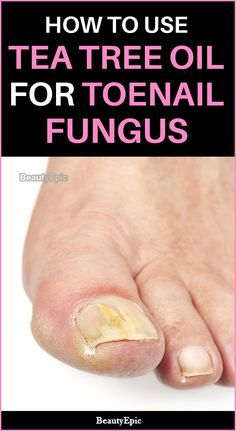 Watch This Video Mind Blowing Home Remedies for Toenail Fungus that Really Work Ideas. Astonishing Home Remedies for Toenail Fungus that Really Work Ideas. Fingernail Fungus, Toenail Fungus Remedies, Toenail Fungus Treatment, Fungal Nail, Spot Treatment, Tea Tree Oil Uses, Toe Fungus, Home Remedies, Natural Remedies