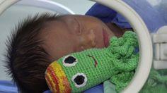 """Μωσαϊκό: θεραπεία """"βελονάκι polvinhos"""" σε πρόωρα μωρά"""