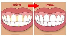 Natural Teeth Whitening Remedies Improper brushing can lead to plaque formation that, when ignored, forms tartar, a solidified form of plaque. Know how to remove tartar Gum Health, Dental Health, Dental Care, Oral Health, Health Tips, Teeth Health, Teeth Whitening Remedies, Natural Teeth Whitening, Tartar Removal
