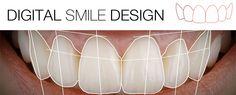 Zaprojektujemy Twój uśmiech marzeń!