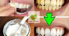 En kaliteli diş macunlarının bile içindeki kimyasallardan ötürü dişlere zarar verdiğini hepimiz biliyoruz. Uzmanlar da zaten bunu hep ...