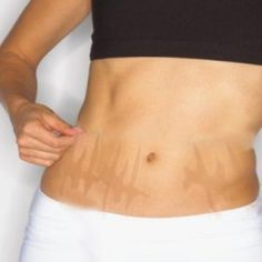 7 Effective Home Remedies For Stretch Marks Removal I am trying the potatoe method right now on. Stretch marks. Well see if it works.
