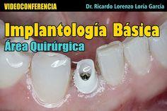 VIDEOCONFERENCIA: Implantología Básica - Área Quirúrgica - Dr. Ricardo Lorenzo Loría García | Odonto-Tv