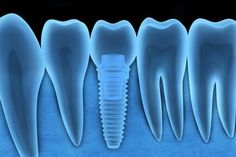 Are Atlanta Dental Implants Ideal For You?