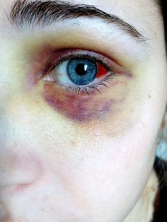 eye bruises bruised Black Eye
