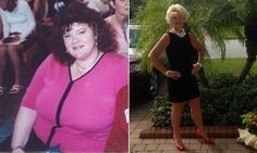 How Kathleen Fee Lost 140 Pounds