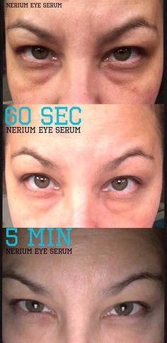 Nerium Eye Serum is here!!! Get instant AND long term results!!! Message me for more info and get yours at http://jenloves.nerium.com