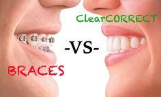 THERE ARE DIFFERENT REASONS TO USE CLEAR CORRECT ALINGERS.THEY RENDER GOOD SOLUTION FOR THE PROBLEM OF SHIFTING OF TEETH AFTER BRACES,CROWDED TEETH,AND SPACES IN THE TEETH