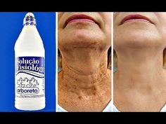 Beauty Care, Beauty Skin, Beauty Hacks, Health And Beauty, Beauty Salon Near Me, Scar Removal Cream, Skin Spots, Tips Belleza, Body Care
