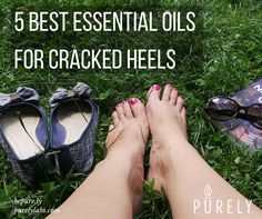 5 Best Essential Oils for Cracked Heels