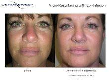 Dermatology facial clensing in maryland