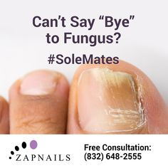 Without ZapNails, it's so hard to say goodbye to nail fungus. Ditch your annoying #SoleMates with our proven treatment system. Call (832) 648-2555 to get started. http://zapnails.com/    #nailfungusremoval #nailfungus