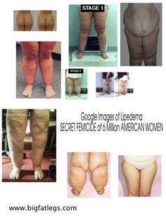Pictures of lipedema.