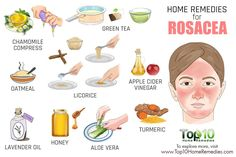 Watch This Video Radiant Natural Remedies for Sagging Skin Ideas. Sublime Natural Remedies for Sagging Skin Ideas. Home Remedies For Rosacea, Natural Acne Remedies, Home Remedies For Acne, Skin Care Remedies, Red Face Remedies, Herbal Remedies, Health Remedies, Acne Skin, Acne Scars