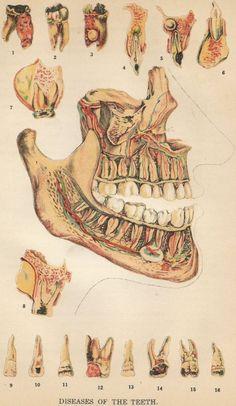 Mandible & Maxillary Anatomy   #bones #bone #tooth #teeth #dental #anatomy #medical #medicine #medicine #medicine #anatomy Medical Drawings, Medical Art, Medical Illustrations, Art Illustrations, Dental Anatomy, Medical Anatomy, Bio Art, Human Anatomy Art, Anatomy Drawing