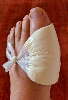 5 Ways To Rid Your Joints Of Uric Acid Crystals And Eliminate Gout - Just Naturally Healthy - Hair Beauty - knittingo Bunion Remedies, Gout Remedies, Natural Health Remedies, Herbal Remedies, Health And Beauty, Health And Wellness, Health Tips, Get Rid Of Bunions, Uric Acid
