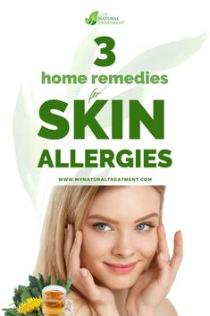 3 Powerful Home Remedies for Skin Allergies (Rashes) Home Remedies For Skin, Skin Rash, Body Organs, Skin Problems, Natural Treatments, Best Diets, Herbal Remedies