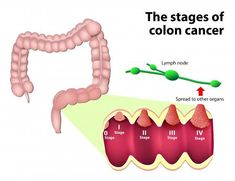 Colon cancer begins in Colon(intestine) The colon is the final part of the digestive tract. Colon cancer typically affects older adults, though it can happen at any age. There are 5 stages of colon cancer from 0 stage to IV stage. Each stage defines the criticality of disease and helps doctor to decide best treatment options to cure the cancer.