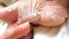 Los dermatólogos se quedan callados cuando un paciente les dice que con este remedio casero elimino los hogos y callos de los pies.