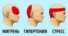 Тех, кто страдает от частых головных болей и мигреней, знают, что это...