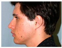Chin Augmentation before and after patient photos from Chicago Plastic Surgery Specialist Dr. Facial Implant, Chin Implant, Plastic Surgery Photos, Photo Galleries, Chicago, Gallery, Face, Roof Rack