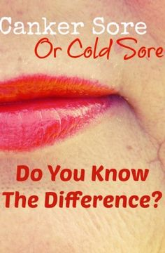 Cold Sore Or Canker Sore? Do you know the difference?
