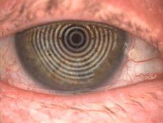 Dry-Eye Dry Eye Treatment, Natural Treatments, Rosacea, Eyes, Natural Remedies, Cat Eyes, Natural Home Remedies