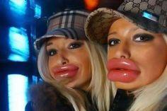 Google Image Result for http://2.bp.blogspot.com/-zjj3PhvjHCk/Thteb6Uba5I/AAAAAAAAAXc/ITVOc2Wsky0/s1600/botox-lips.jpg