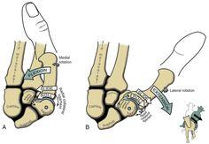 Thumb flexion/extension arthrokinematics