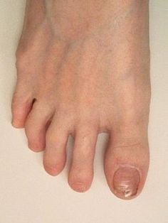 Healthy toenail growth continues without need for                      additional treatment.