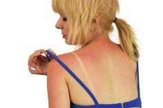Comment soulager les coups de soleil ? Voici 4 remèdes naturels pour soulager vos coups de soleil et atténuer la douleur.
