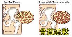 iDoctorGroup - 預防「骨質疏鬆」,絕對不是靠喝牛奶!「8種健骨食物」這樣吃,80歲依然骨頭硬朗。