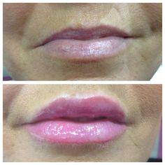 Excellence in Facial Aesthetics! www.spabannockburn.co.uk