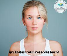 Miért fontos a megfelelő arcápolási rutin rosaceás bőrre? Hogyan alakítsd ki és milyen termékeket használj? Cikkünkből mindent megtudhatsz. How To Treat Rosacea, Brown Spots On Face, Coconut Oil For Skin, Oils For Skin, Good Skin, Natural Skin Care, Skin Care Tips, Facial, Rosacea