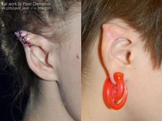 Ear Reshaping | BME: Tattoo, Piercing and Body Modification News
