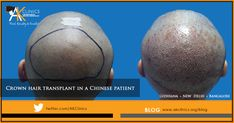 Crown hair transplant in a Chinese patient - Case Study Hair Transplant In India, Male Pattern Baldness, Before After Photo, Medical History, Crown Hairstyles, Hair Loss Treatment, Textured Hair, Case Study, Surgery