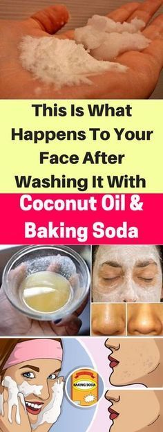 This Is What Happens To Your Face After Washing It With Coconut Oil And Baking Soda - infacter