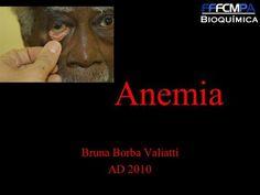 Anemia Bruna Borba Valiatti AD 2010. Definição Diz-se haver anemia quando a concentração da hemoglobina sanguínea diminui aquém…